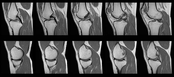 torn acl mri knee scan series - adult human female - medical diagrams stock pictures, royalty-free photos & images