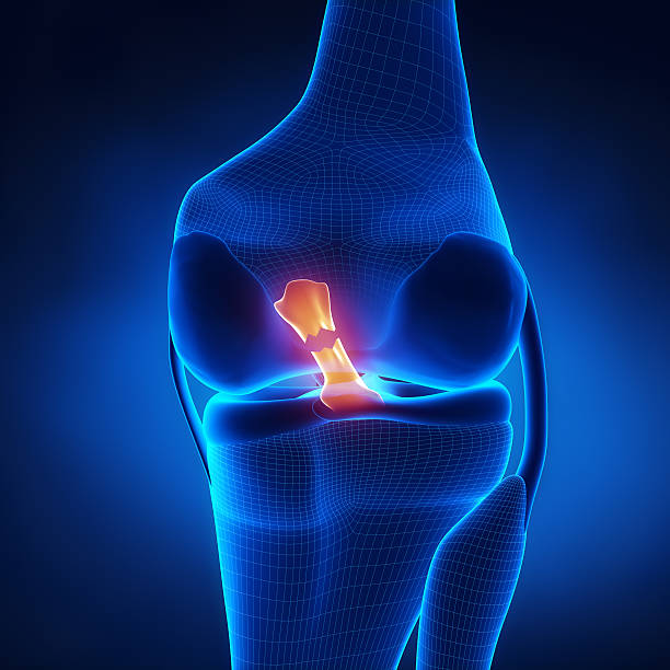 Torn Anterior Cruciate Ligament Torn Anterior Cruciate Ligament in x-ray view janulla stock pictures, royalty-free photos & images