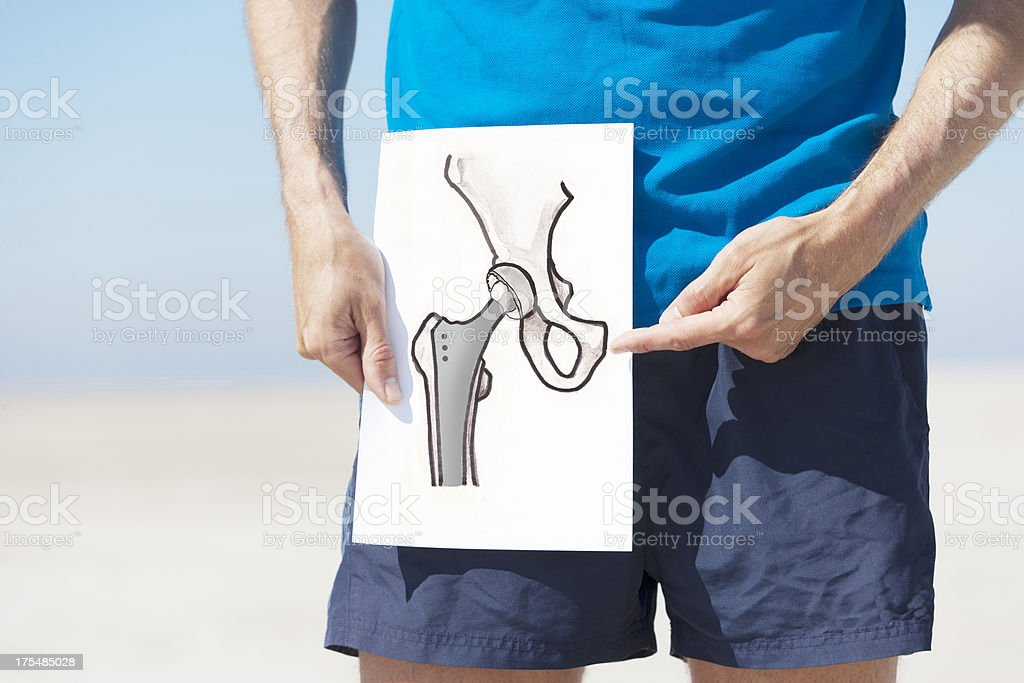 Total hip replacement stock photo
