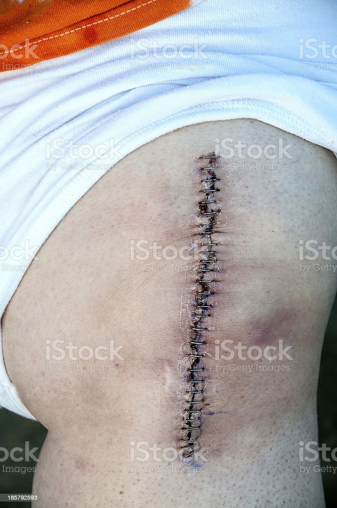 Total Knee Replacement stock photo