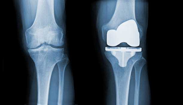 Total Knee Replacement X-ray - before and after stock photo