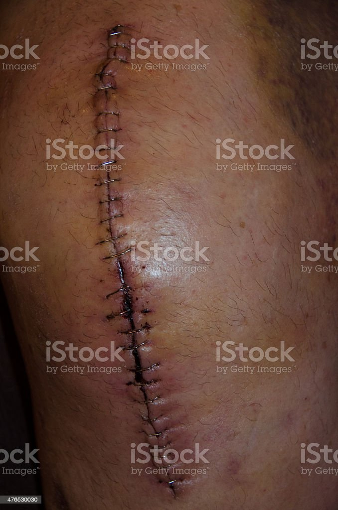 Total Right Knee Replacement Incision stock photo