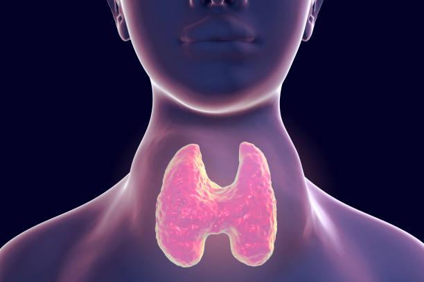 bócio difuso tóxico, hipertireoidismo - cancer da tireoide - fotografias e filmes do acervo