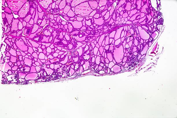 bócio tóxico (hipertireoidismo) microscopia de luz - cancer da tireoide - fotografias e filmes do acervo
