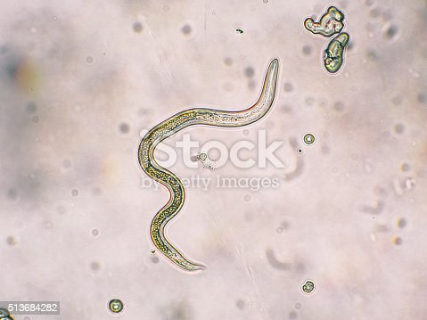 Toxocara canis second stage larvae hatch from eggs in microscope. Toxocariasis, also known as Roundworm Infection, causes disease in humans