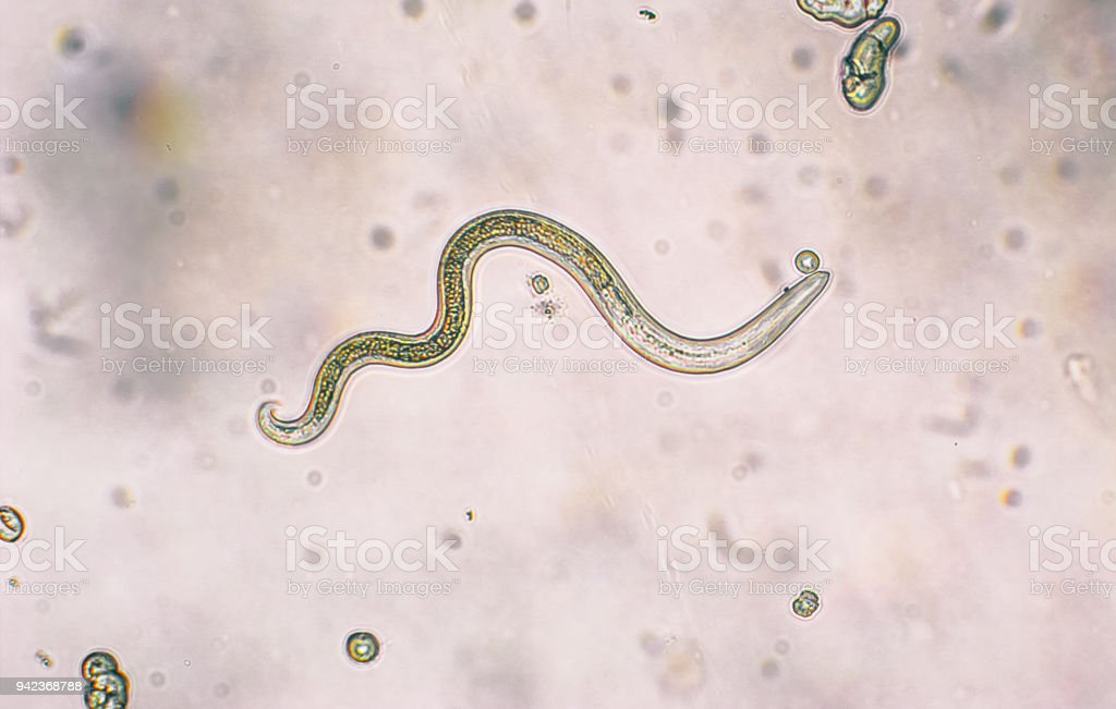 Toxocara canis second stage larvae hatch from eggs Toxocara canis second stage larvae hatch from eggs in microscope. Toxocariasis, also known as Roundworm Infection, causes disease in humans Aggression Stock Photo
