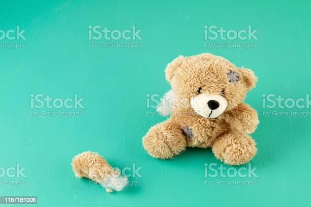 Toy teddy bear with teared away paw picture id1167181006?b=1&k=6&m=1167181006&s=612x612&h=zmtfy75d5555awxe3wga3slxekfimp0gnmvsyixmwja=