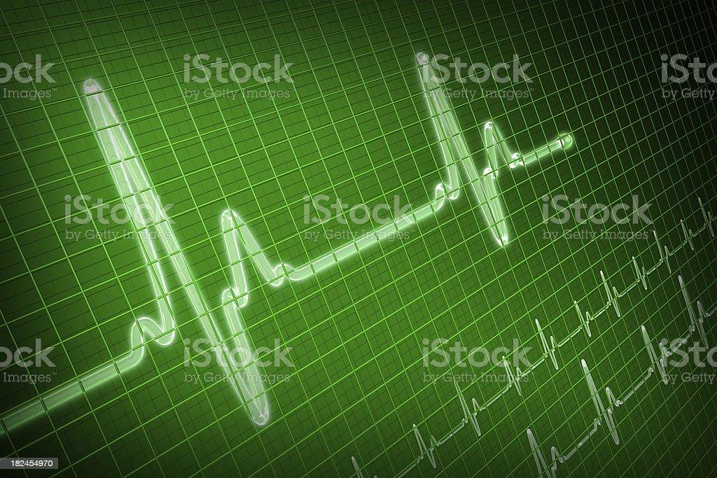 EKG trace royalty-free stock photo