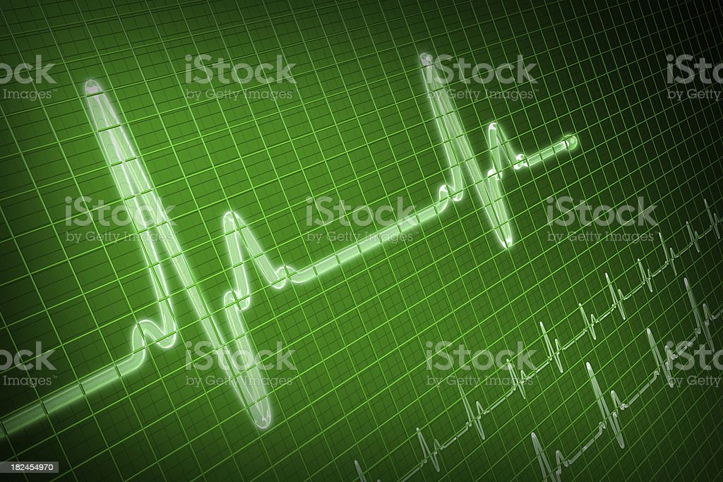 EKG-Ablaufverfolgung – Foto