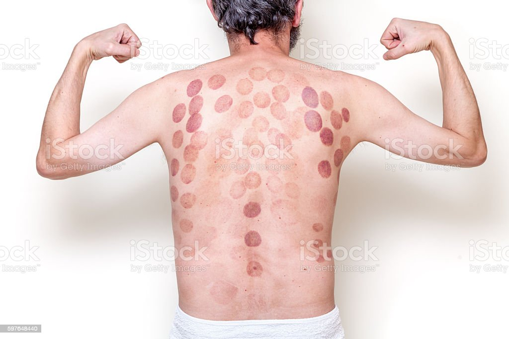 Traces of can massage man back stock photo