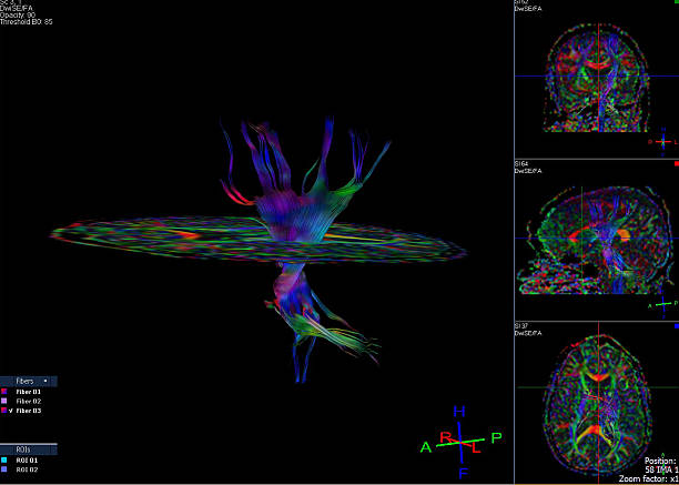 Tractography and DTI image of the brain stock photo