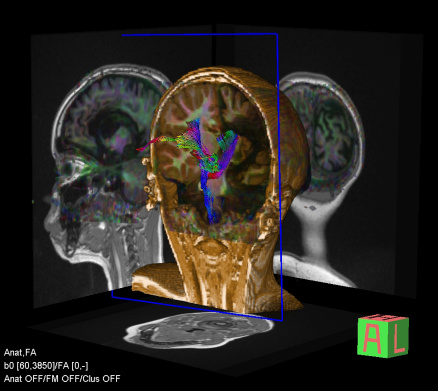 Tractography Of The Brain Stock Photo - Download Image Now