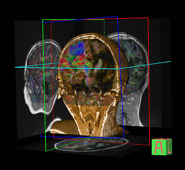Tractography (DTI- diffusion tensor imaging MRI) of the brain stock photo
