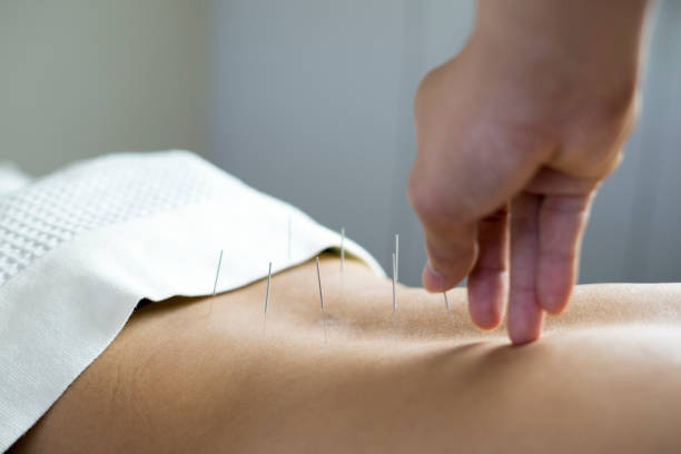 traditional acupuncture treatment traditional acupuncture treatment chinese herbal medicine stock pictures, royalty-free photos & images