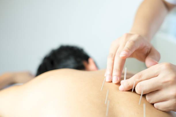 traitement d'acupuncture traditionnelle - acupuncture photos et images de collection