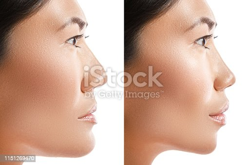 Transformation of Asian woman. Result of plastic surgery. Concept of different modifications with a face.