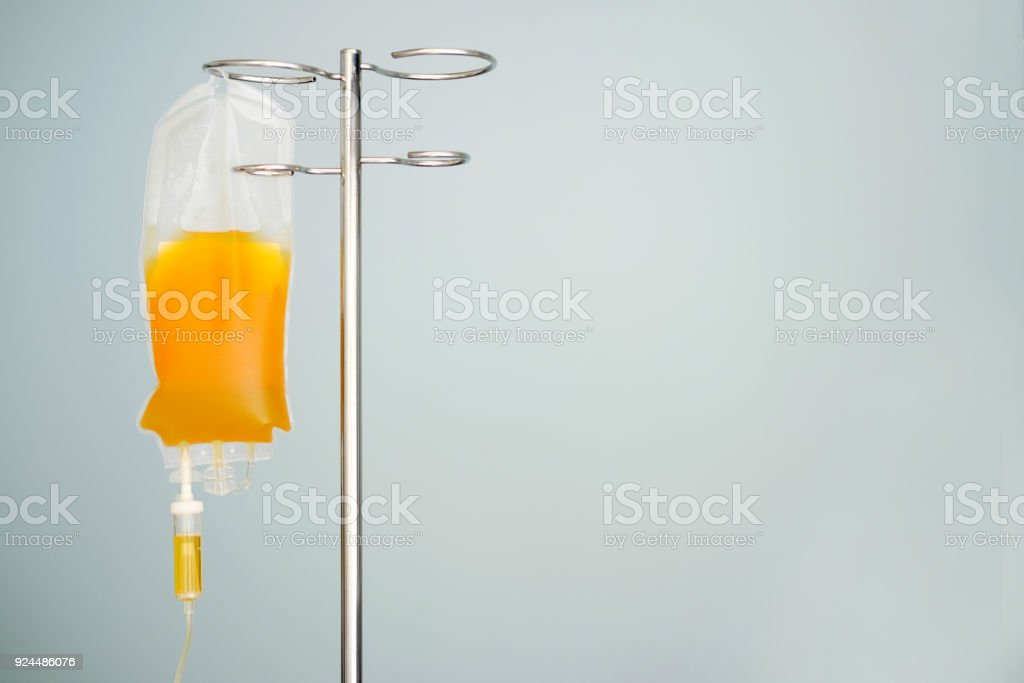 transfusion of fresh frozen plazma (ffp), bag on stand stock photo