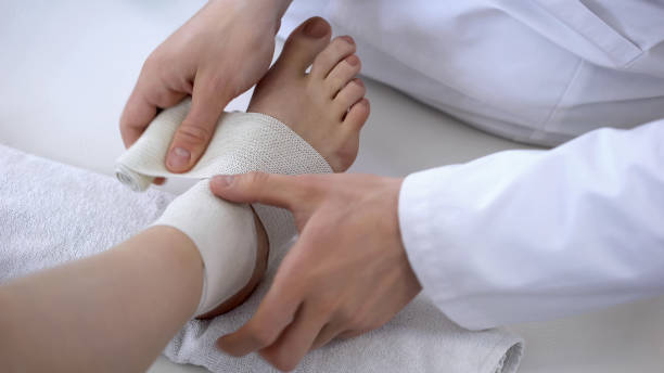 traumatologist applying bandage to sprained ankle, workout injury, leg closeup - medical dressing stock pictures, royalty-free photos & images