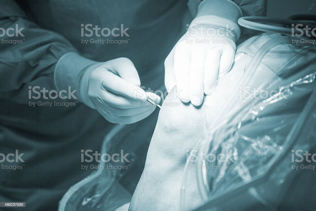 Traumatology orthopedic surgery knee arthroscopy drip stock photo