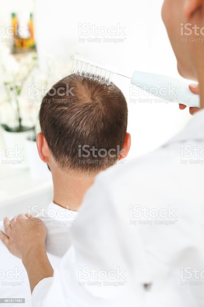 Treatment Against Hair Loss Oxygen Mesotherapy Stock Photo