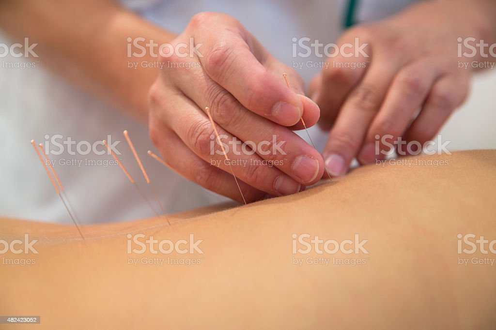 Treatment by acupuncture stock photo