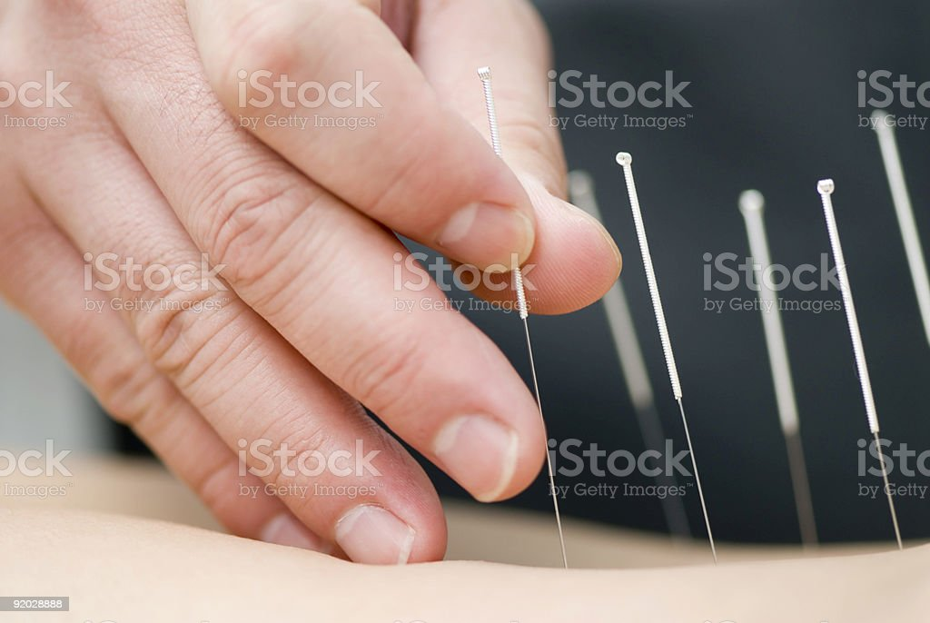 Treatment by acupuncture royalty-free stock photo