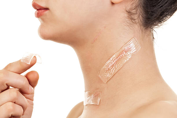 Treatment for Scars Gel sheet - treatment for scars (after surgical intervention - thyroid cancer and metastases in the lymph glands) scar stock pictures, royalty-free photos & images