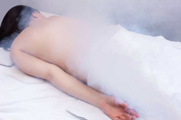 treatment of diseases of the back and skin of a girl with osteochondrosis and intervertebral hernia with the help of physiotherapy cryotherapy, cold treatment, rejuvenation - crioterapia foto e immagini stock