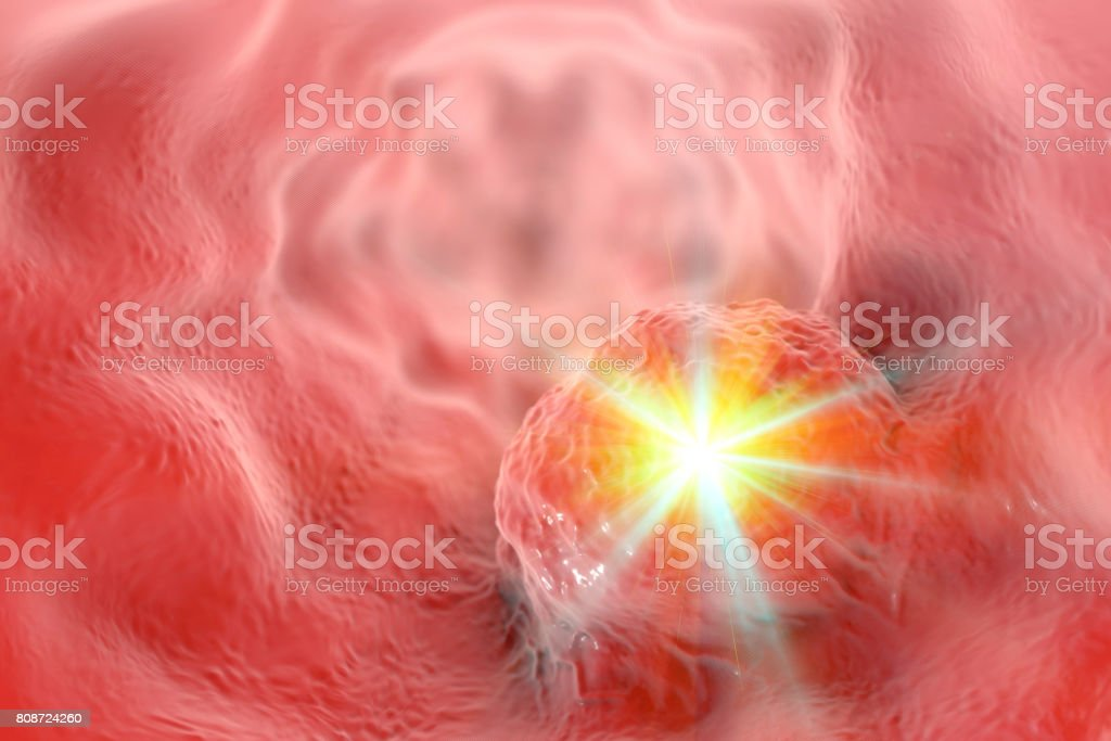 Treatment of esophageal cancer concept stock photo