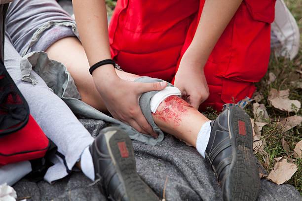 Behandlung der Beine Verletzungen – Foto