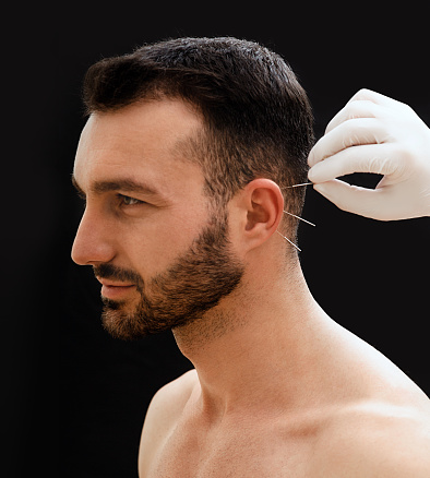 istock Treatment of many diseases by ear acupuncture. Acupuncturist treats a patients illness with acupuncture at special points on male ear. 1217562673