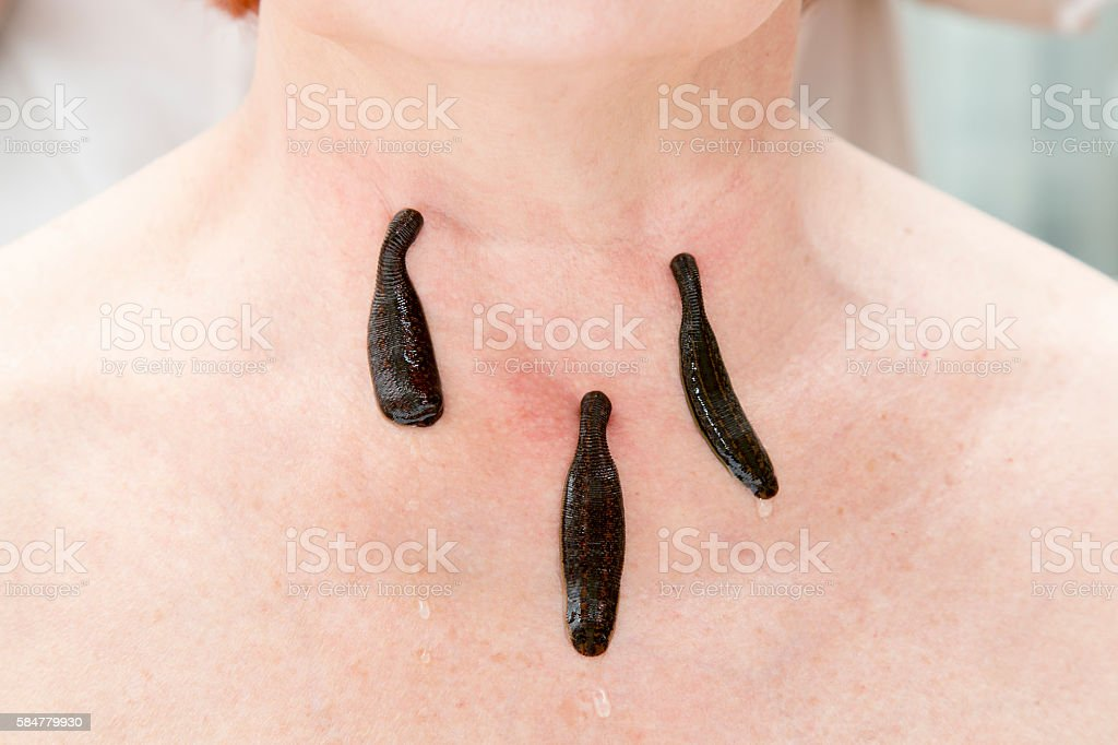 Treatment of people of medical leeches. stock photo