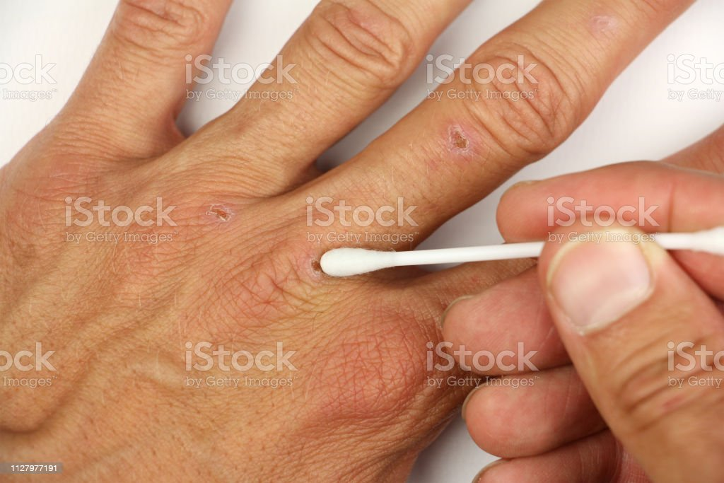 treatment of small wound on the human arm with white cotton swab for...