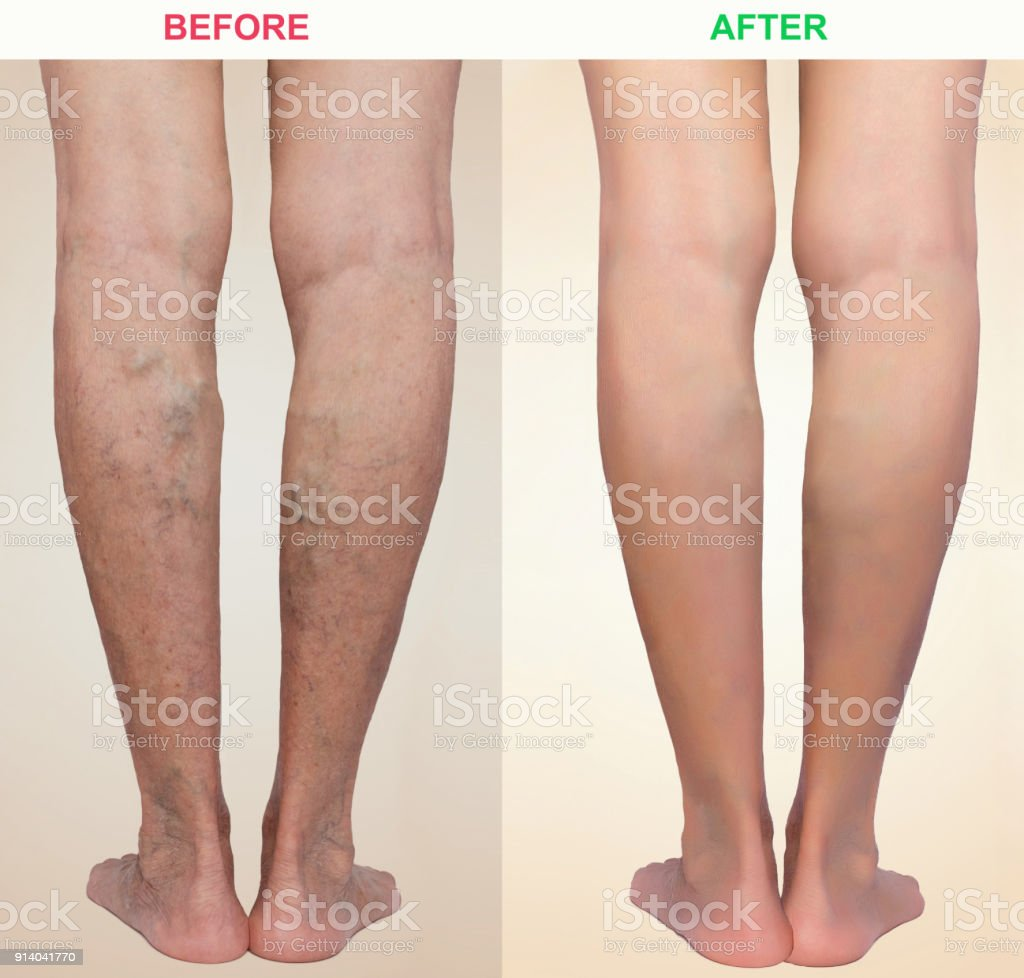 Treatment of varicose before and after. Varicose veins on the legs stock photo