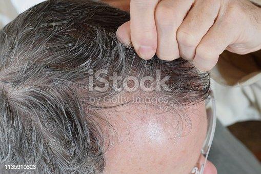 istock Trichotillomania, human impulse  behavioral problem, hair pulling disorder 1135910623