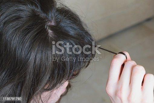 istock Trichotillomania, human impulse behavioral problem,hair pulling disorder 1135791792