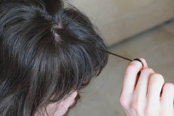 trichotillomania, human impulse behavioral problem,hair pulling disorder - puxar cabelos imagens e fotografias de stock