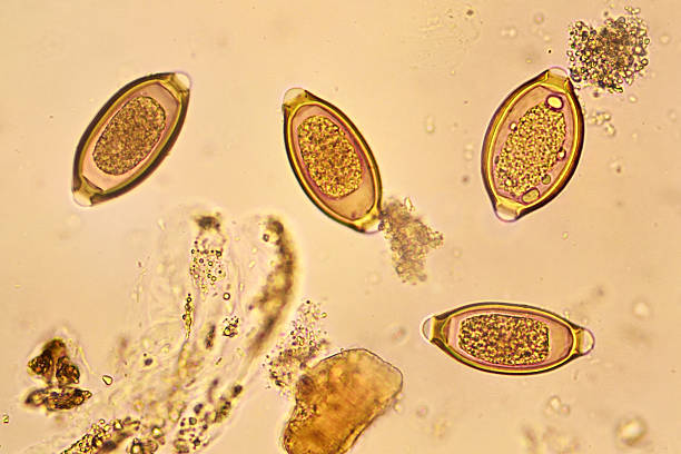 Trichuris trichiura Egg of Trichuris trichiura in stool, analyze by microscope protozoan stock pictures, royalty-free photos & images