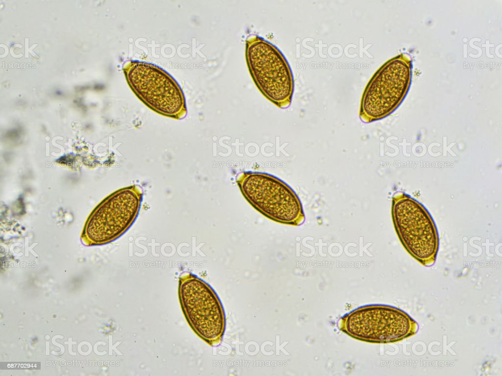 Trichuris trichiura stock photo