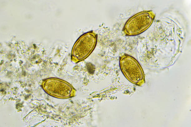 Trichuris trichiura (whipworm) stock photo