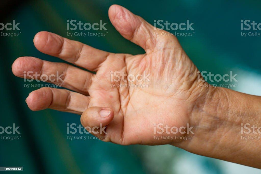 dolor en dedo meñique de la mano