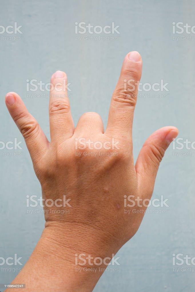 Trigger Finger lock on middle finger of woman\'s back left hand,...