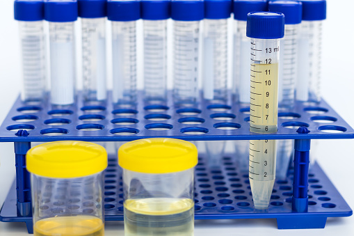 tube of urine test tube in hand,Healthcare And Medicine. Medical urine test, close-up,