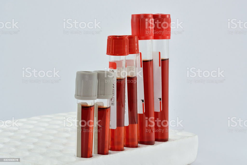tube with blood sample stock photo