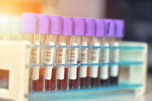 Tubes of blood sample for testing. Medical equipment Tubes of blood sample for testing. Medical equipment tube stock pictures, royalty-free photos & images