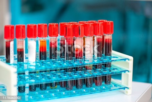 istock Tubes of blood sample for testing 1175042201