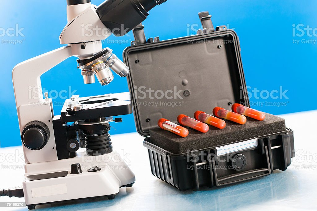 Tubes with samples of infectious microorganisms stock photo