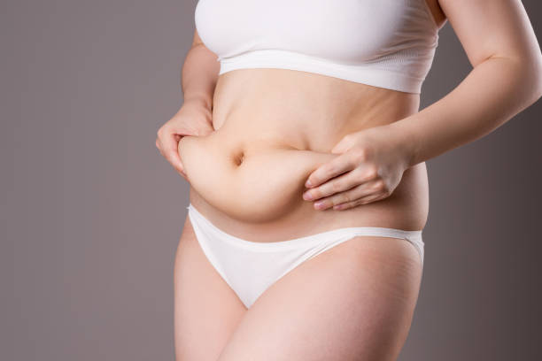 Tummy tuck, flabby skin on a belly, plastic surgery concept stock photo