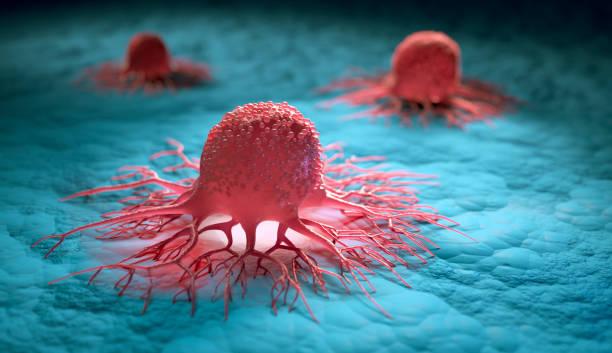 Tumor - Células cancerosas - foto de stock