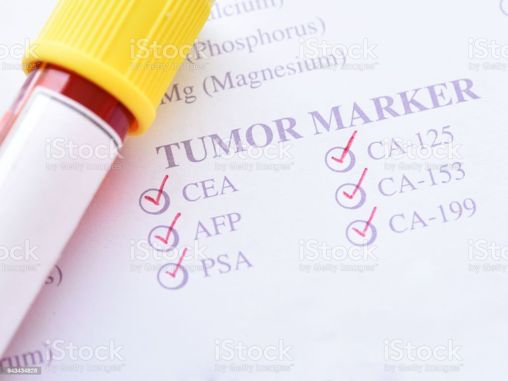 Tumor marker test stock photo